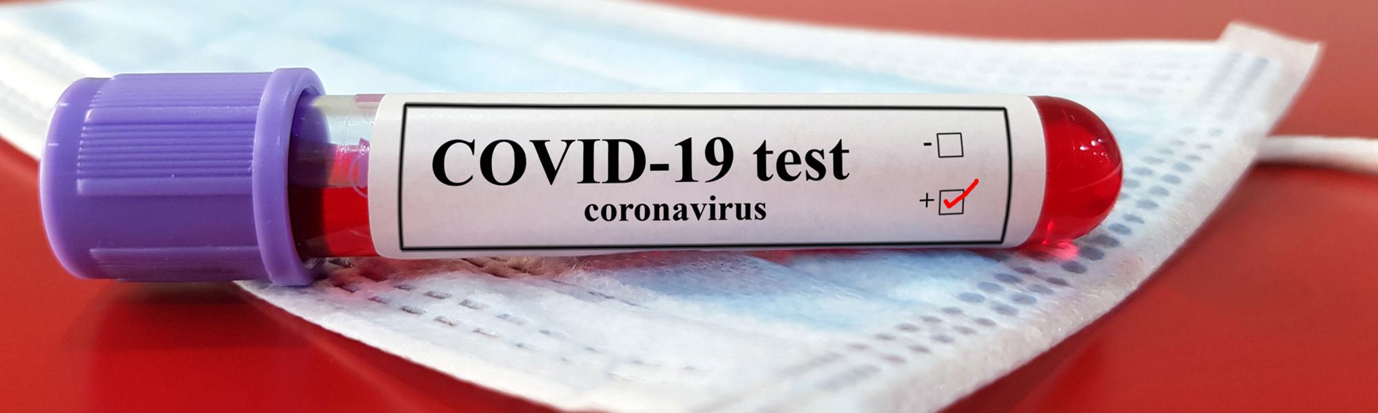 COVID-19 test tube